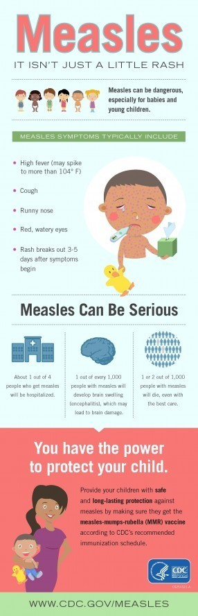 measles infographic - Measles Information